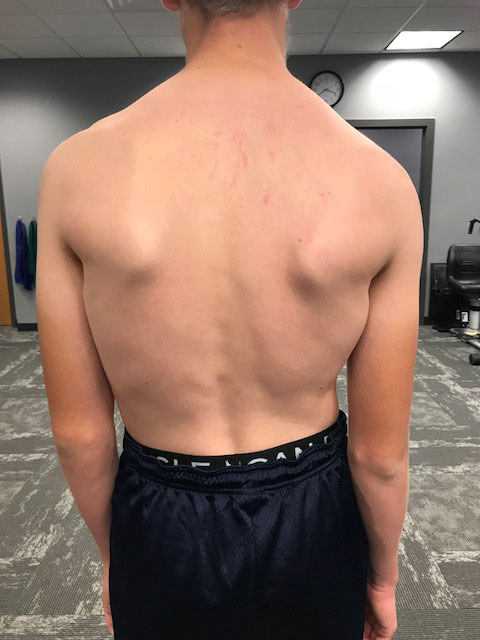 Shoulder Back Asymmetry